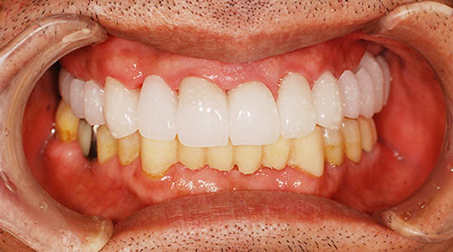 仮歯を用いてイメージのすり合わせ