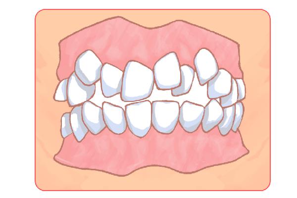 お子さんの歯並び矯正も実施します